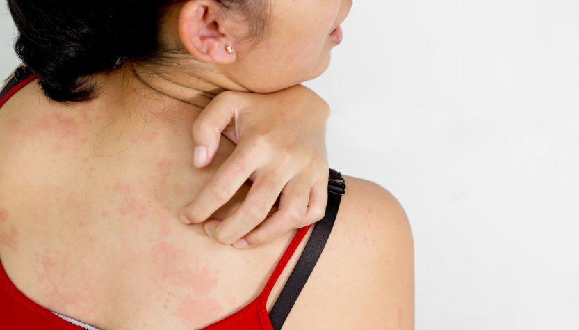Запотевание кожи