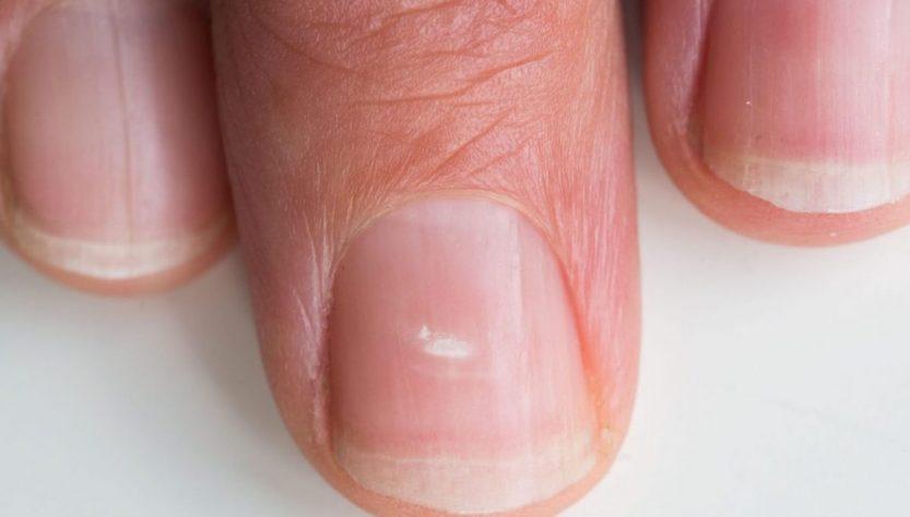 растяжки на ногтях