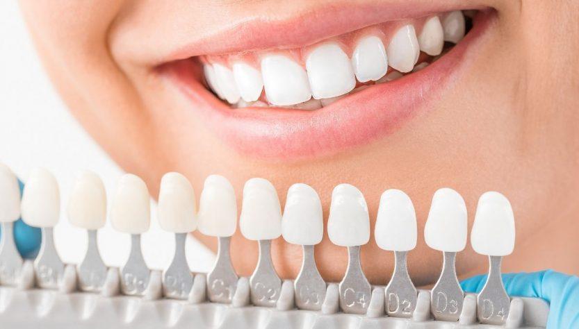 Стоматологические люминиры